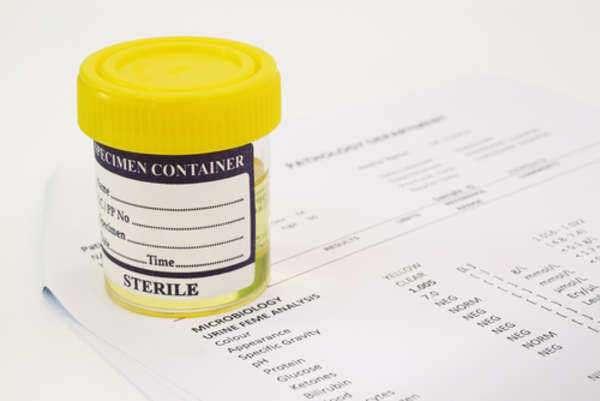 2 Purpose of A Drug Testing